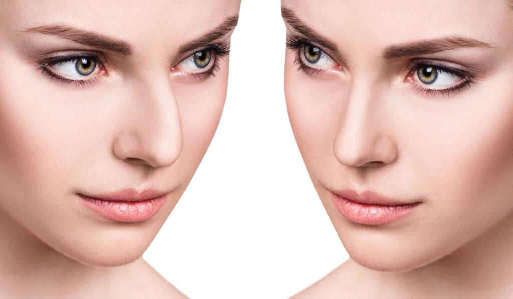 Nasenkorrektur: Verschiedene Nasenformen